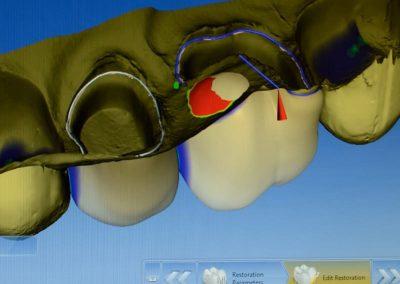 zub po částečné extrakci