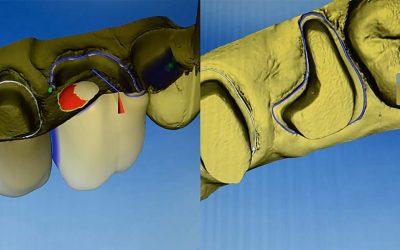 Oprava zubu a částečné extrace zubu