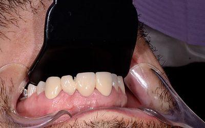 Zubní protetika. Oprava 10 let staré práce