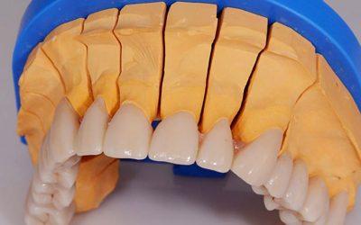 Zubní můstek a jeho renovace – bezkovové práce