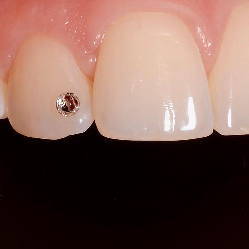 ostrava aplikace sperku na zub