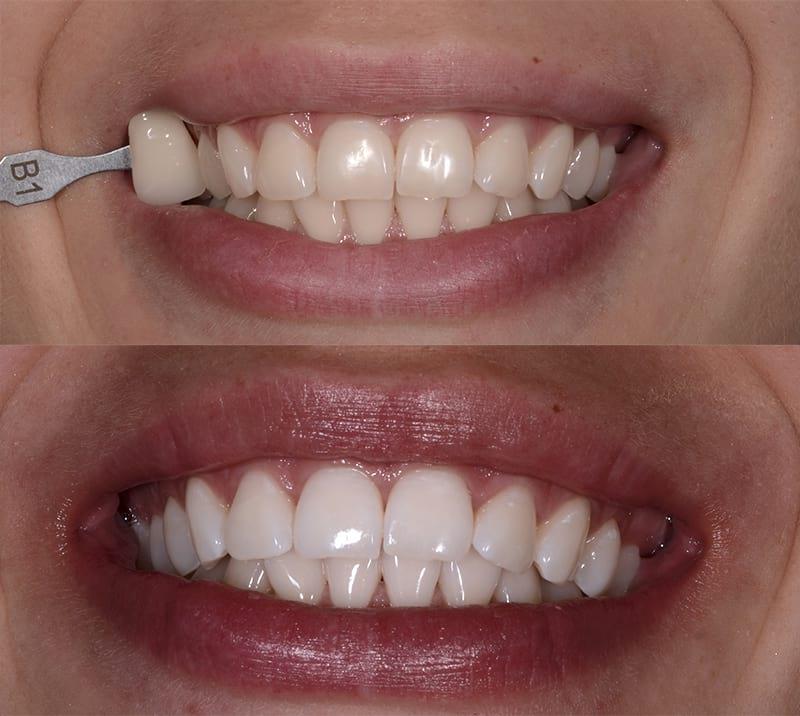 beleni zubu pred a po beleni