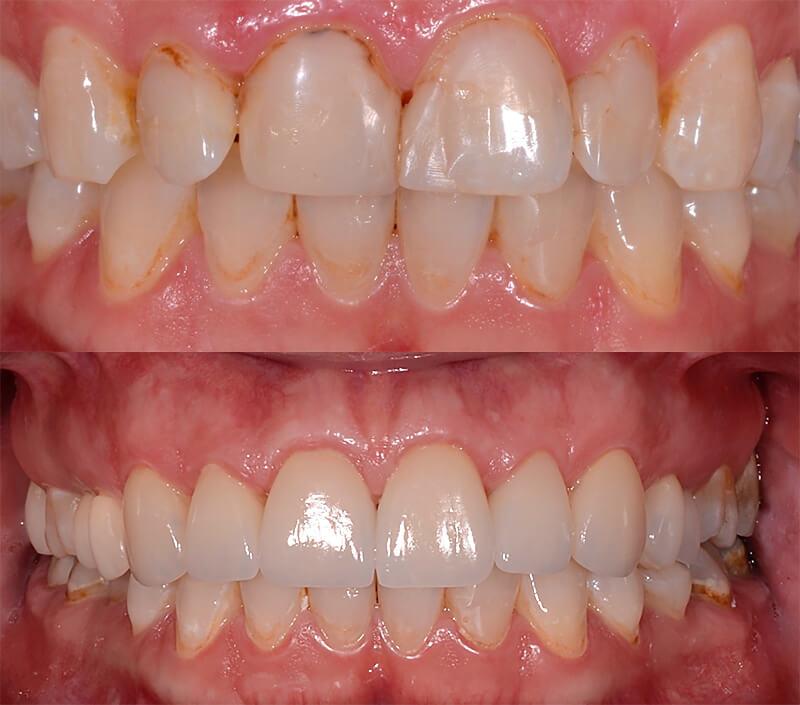 cerec opravy zubu ostrava
